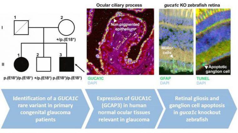 Descubierto un nuevo gen candidato que evidencia la complejidad de las alteraciones del glaucoma congénito